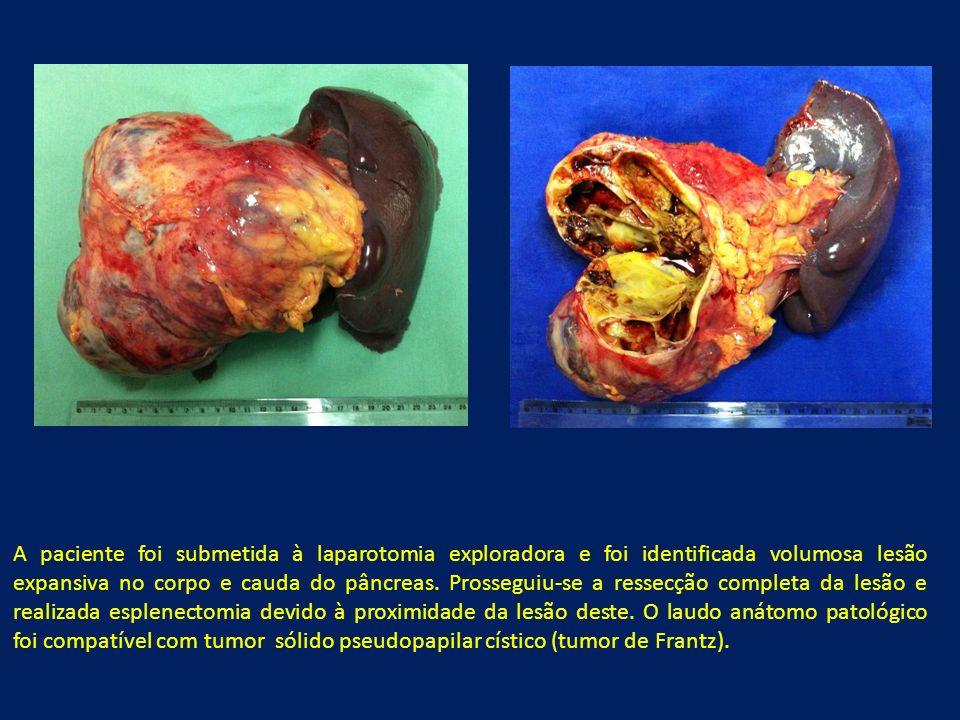 A paciente foi submetida à laparotomia exploradora e foi identificada volumosa lesão expansiva no corpo e cauda do pâncreas. Prosseguiu-se a ressecção