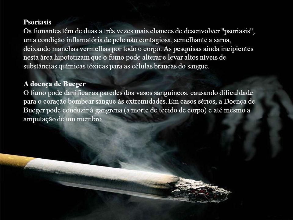 Psoriasis Os fumantes têm de duas a três vezes mais chances de desenvolver