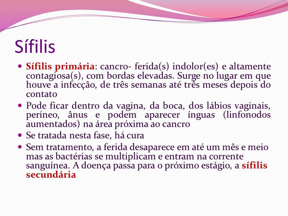Sífilis Sífilis primária: cancro- ferida(s) indolor(es) e altamente contagiosa(s), com bordas elevadas. Surge no lugar em que houve a infecção, de trê
