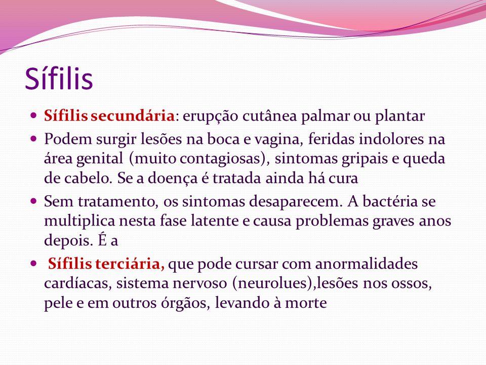 Sífilis Sífilis secundária: erupção cutânea palmar ou plantar Podem surgir lesões na boca e vagina, feridas indolores na área genital (muito contagios