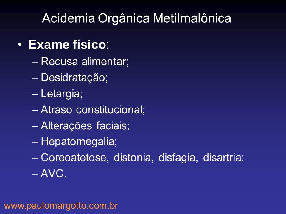 Acidemia Orgânica Metilmalônica Exame físico: –Recusa alimentar; –Desidratação; –Letargia; –Atraso constitucional; –Alterações faciais; –Hepatomegalia