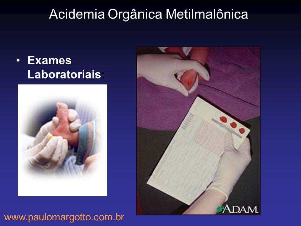 Acidemia Orgânica Metilmalônica Exames Laboratoriais: www.paulomargotto.com.br