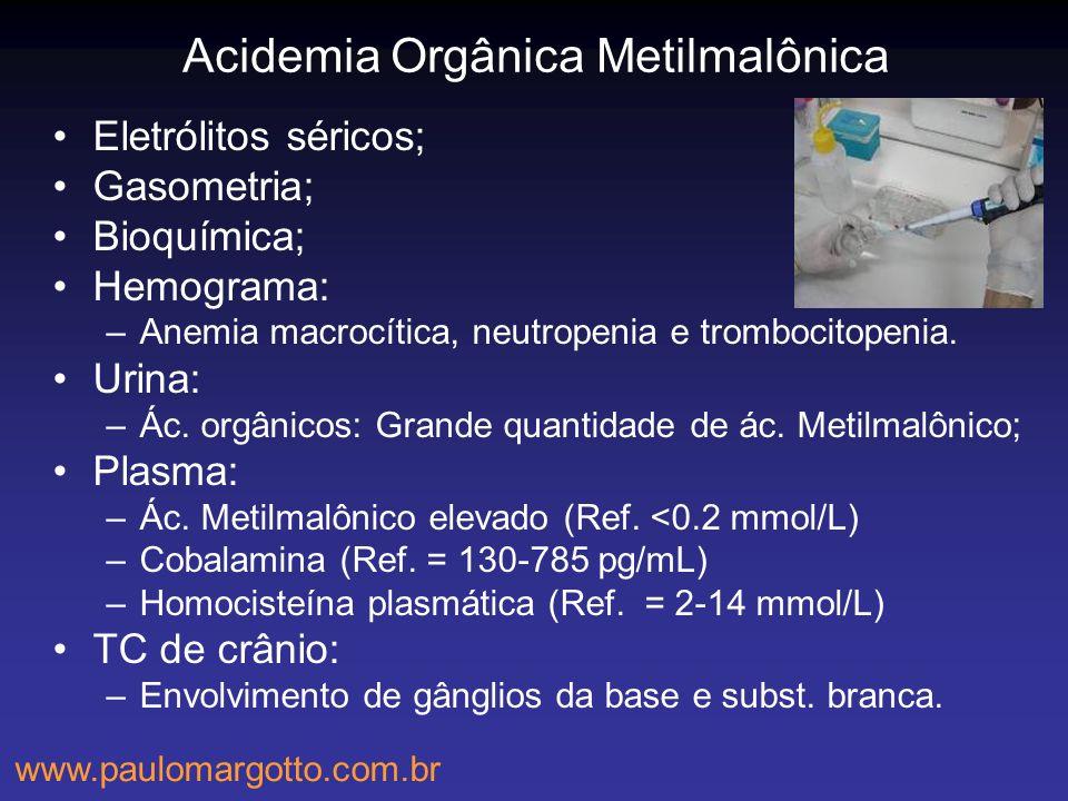 Acidemia Orgânica Metilmalônica Eletrólitos séricos; Gasometria; Bioquímica; Hemograma: –Anemia macrocítica, neutropenia e trombocitopenia. Urina: –Ác