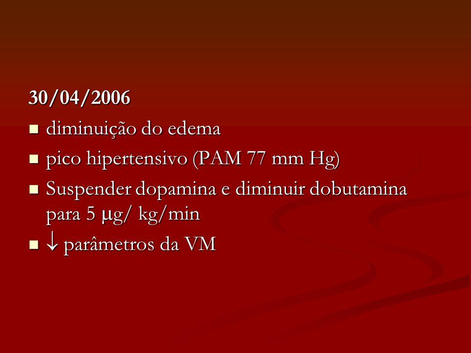30/04/2006 diminuição do edema diminuição do edema pico hipertensivo (PAM 77 mm Hg) pico hipertensivo (PAM 77 mm Hg) Suspender dopamina e diminuir dob