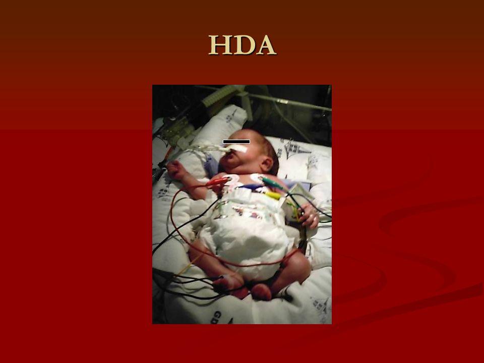 DISCUSSÃO Caso clínico descrito um recém-nascido prematuro que evoluiu com insuficiência renal aguda durante um quadro de choque séptico Caso clínico descrito um recém-nascido prematuro que evoluiu com insuficiência renal aguda durante um quadro de choque séptico Prematuridade (< 1500 gramas) é um fator de risco específico para o desenvolvimento da IRA Prematuridade (< 1500 gramas) é um fator de risco específico para o desenvolvimento da IRA CATALDI, L; LEONE, R; MORETTI U.