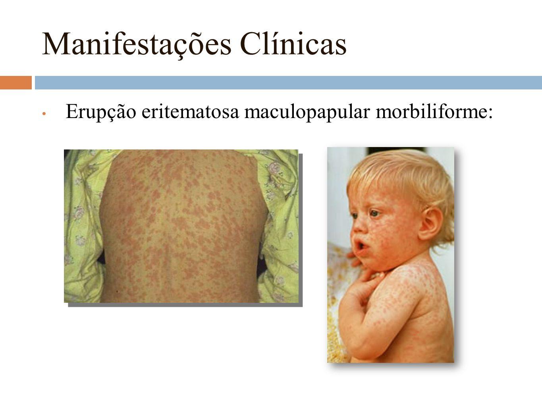 Manifestações Clínicas Erupção eritematosa maculopapular morbiliforme: