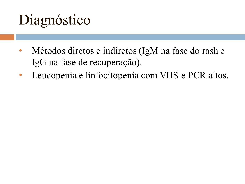 Diagnóstico Métodos diretos e indiretos (IgM na fase do rash e IgG na fase de recuperação). Leucopenia e linfocitopenia com VHS e PCR altos.