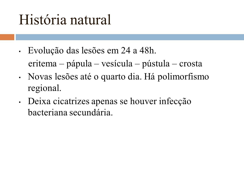 História natural Evolução das lesões em 24 a 48h. eritema – pápula – vesícula – pústula – crosta Novas lesões até o quarto dia. Há polimorfismo region