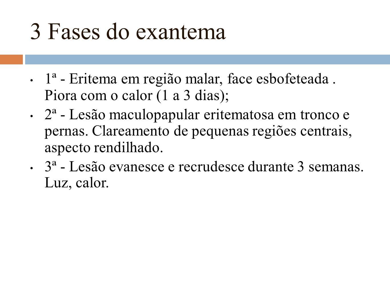 3 Fases do exantema 1ª - Eritema em região malar, face esbofeteada. Piora com o calor (1 a 3 dias); 2ª - Lesão maculopapular eritematosa em tronco e p