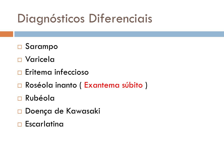 Diagnósticos Diferenciais Sarampo Varicela Eritema infeccioso Roséola inanto ( Exantema súbito ) Rubéola Doença de Kawasaki Escarlatina