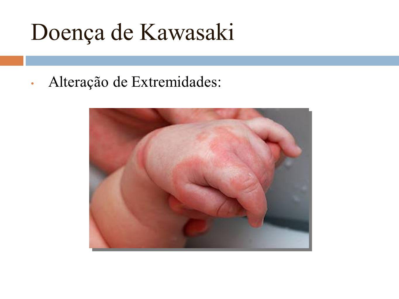 Doença de Kawasaki Alteração de Extremidades: