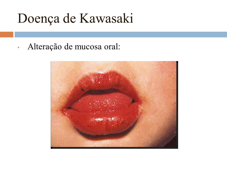 Doença de Kawasaki Alteração de mucosa oral: