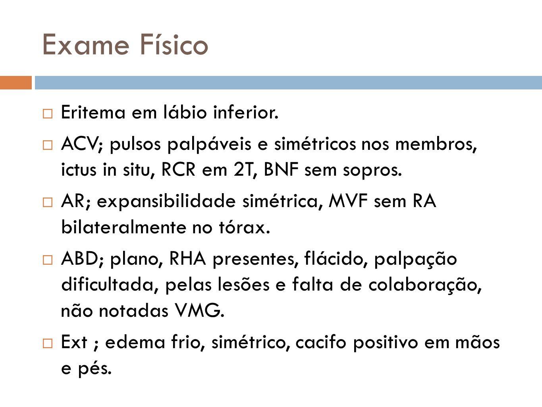 Exame Físico Eritema em lábio inferior. ACV; pulsos palpáveis e simétricos nos membros, ictus in situ, RCR em 2T, BNF sem sopros. AR; expansibilidade