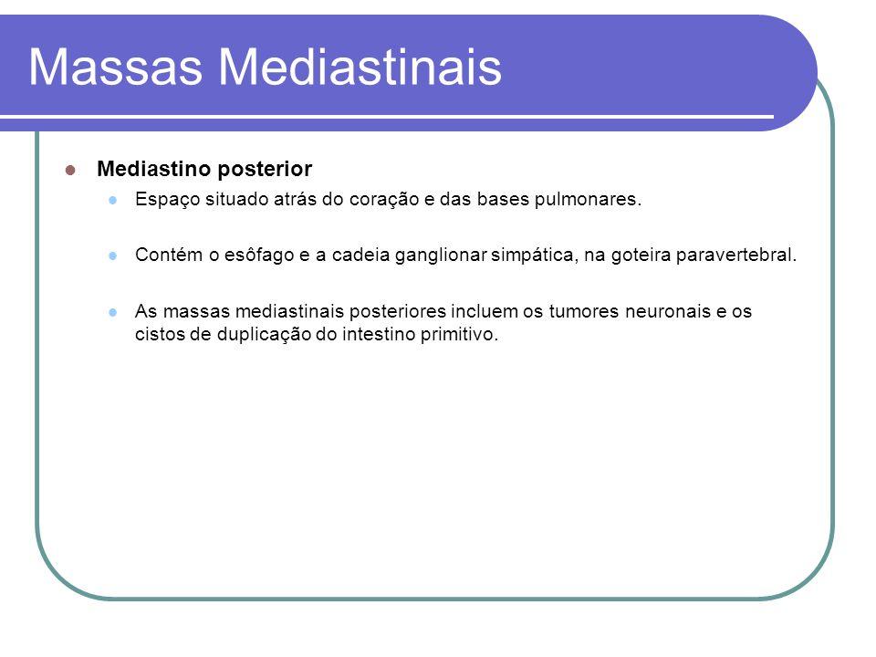 Massas Mediastinais Introdução 1/3 assintomático 55 a 65% são sintomáticos Diagnóstico através de exames de rotina.