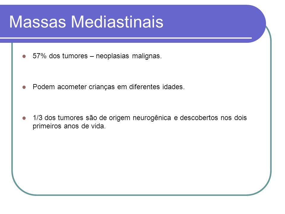 Massas Mediastinais Quadro Clínico Assintomático Dispnéia ou respiração ruidosa – Efeito de massa no mediastino.