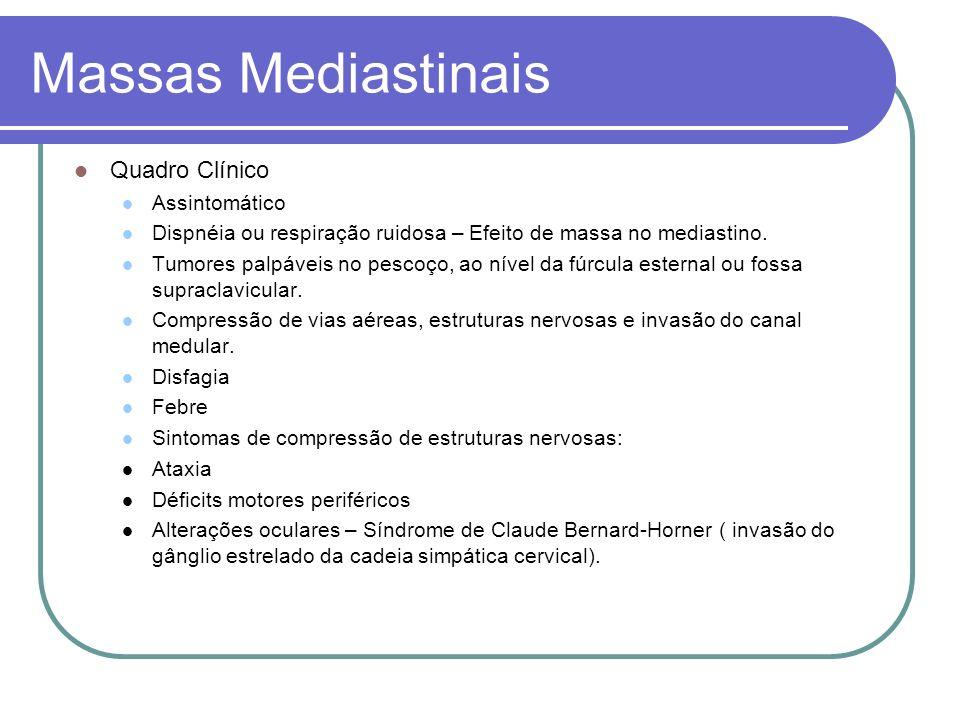Massas Mediastinais Quadro Clínico Assintomático Dispnéia ou respiração ruidosa – Efeito de massa no mediastino. Tumores palpáveis no pescoço, ao níve
