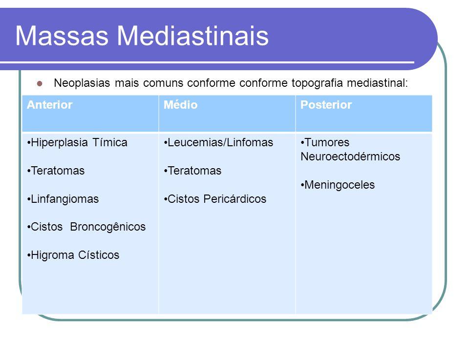Massas Mediastinais Tumores mediastinais mais freqüentes conforme idade: < 1 ano1 – 3 anos3 – 11 anos11 – 21 anos Neuroblastomas Teratomas Neuroblastomas Teratomas Linfomas Neuroblastomas Rabdomiossarcomas Linfomas Sarcomas de Ewing Rabdomiossarcomas