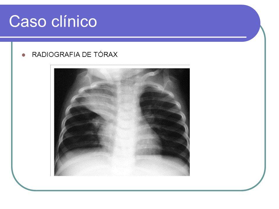 Caso clínico EXAMES LABORATORIAIS Hemoglobina: 11g/dl Hematócrito: 33,5% Plaquetas: 486.000 VHS: 10mm/h Leucograma: 11.100 Segmentados: 40% Bastões: 2% Linfócitos: 56% Monócitos: 2%