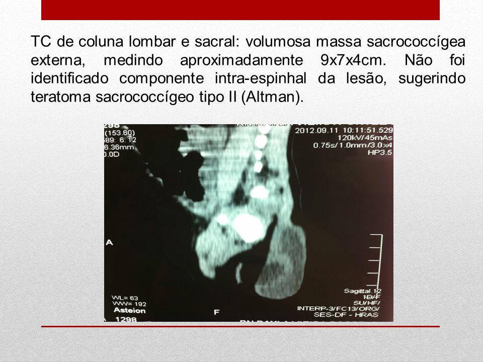 TC de coluna lombar e sacral: volumosa massa sacrococcígea externa, medindo aproximadamente 9x7x4cm. Não foi identificado componente intra-espinhal da