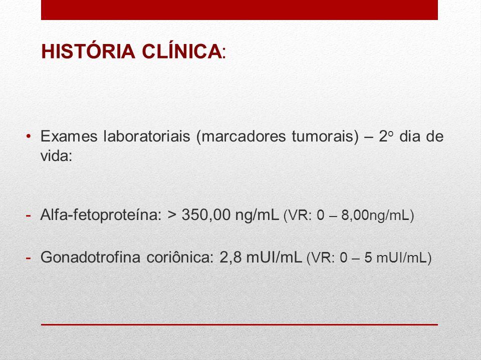 Exames laboratoriais (marcadores tumorais) – 2 o dia de vida: -Alfa-fetoproteína: > 350,00 ng/mL (VR: 0 – 8,00ng/mL) -Gonadotrofina coriônica: 2,8 mUI