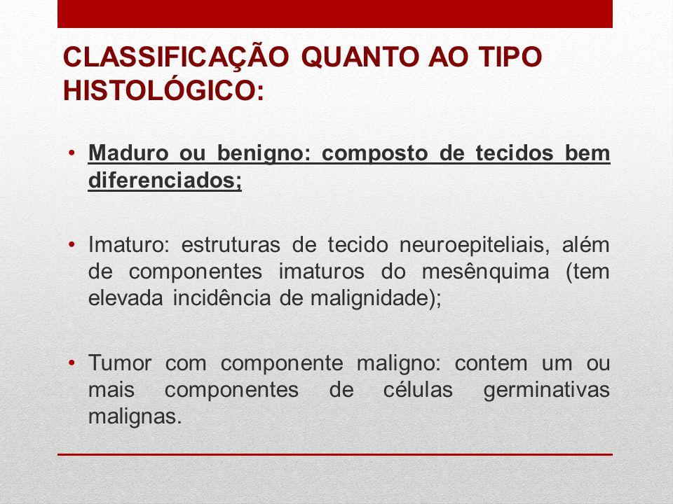 CLASSIFICAÇÃO QUANTO AO TIPO HISTOLÓGICO: Maduro ou benigno: composto de tecidos bem diferenciados; Imaturo: estruturas de tecido neuroepiteliais, alé
