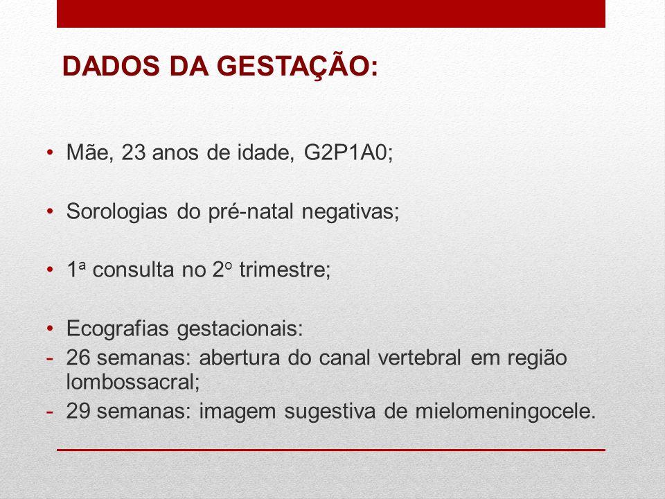 Mãe, 23 anos de idade, G2P1A0; Sorologias do pré-natal negativas; 1 a consulta no 2 o trimestre; Ecografias gestacionais: -26 semanas: abertura do can
