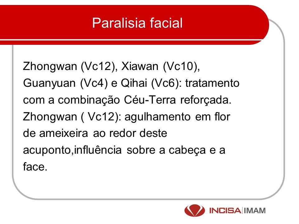 Paralisia facial Zhongwan (Vc12), Xiawan (Vc10), Guanyuan (Vc4) e Qihai (Vc6): tratamento com a combinação Céu-Terra reforçada. Zhongwan ( Vc12): agul