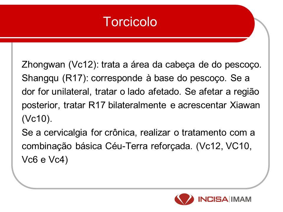 Torcicolo Zhongwan (Vc12): trata a área da cabeça de do pescoço. Shangqu (R17): corresponde à base do pescoço. Se a dor for unilateral, tratar o lado