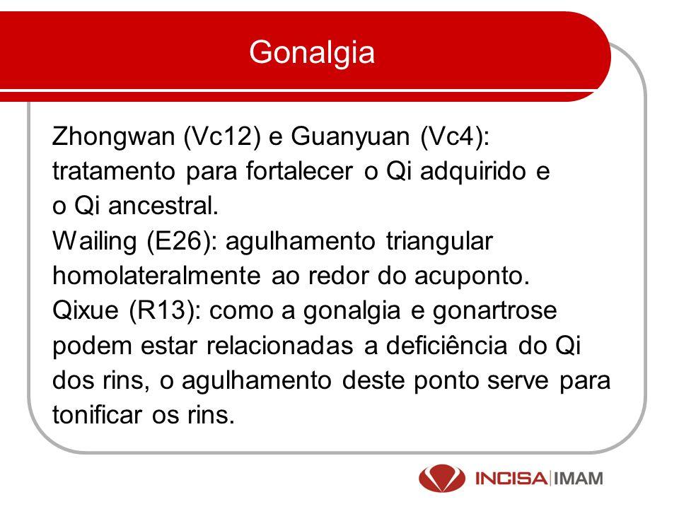 Gonalgia Zhongwan (Vc12) e Guanyuan (Vc4): tratamento para fortalecer o Qi adquirido e o Qi ancestral. Wailing (E26): agulhamento triangular homolater