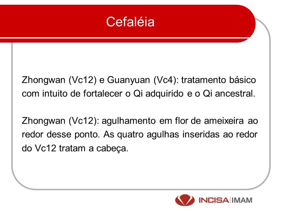 Cefaléia Zhongwan (Vc12) e Guanyuan (Vc4): tratamento básico com intuito de fortalecer o Qi adquirido e o Qi ancestral. Zhongwan (Vc12): agulhamento e