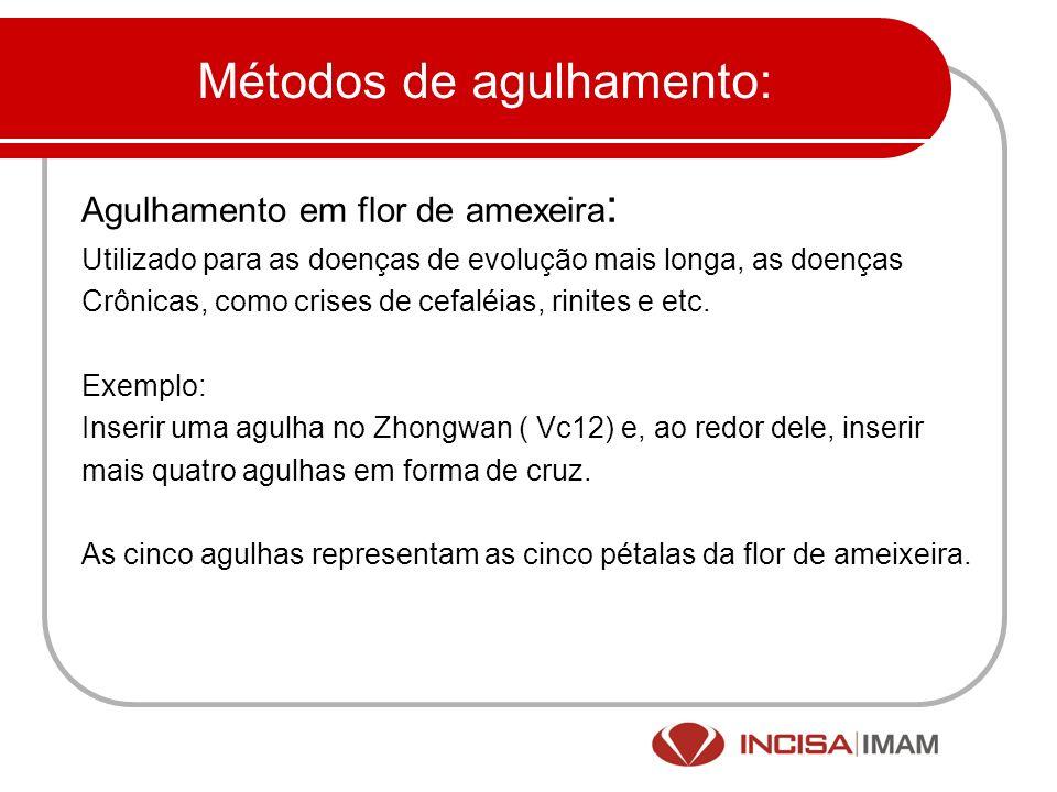 Pesquisas: 28 cases of sciatica with treatment of abdominal acupuncture.