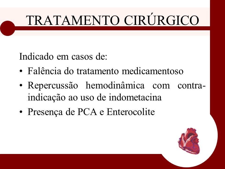 TRATAMENTO CIRÚRGICO Indicado em casos de: Falência do tratamento medicamentoso Repercussão hemodinâmica com contra- indicação ao uso de indometacina