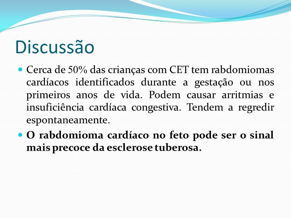 Discussão Cerca de 50% das crianças com CET tem rabdomiomas cardíacos identificados durante a gestação ou nos primeiros anos de vida. Podem causar arr
