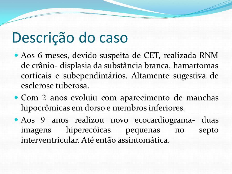 Descrição do caso Aos 6 meses, devido suspeita de CET, realizada RNM de crânio- displasia da substância branca, hamartomas corticais e subependimários