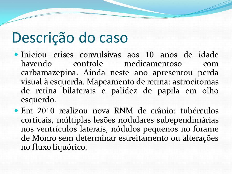 Descrição do caso Ainda em 2010 referenciada a consulta de Pneumologia devido alterações na TC de tórax- nódulos centrolobulares, alguns com atenuação em vidro-fosco, de distribuição esparsa bilateral que podem representar MMPH.
