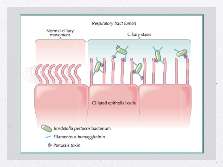 Caso Clínico Exame Laboratorial Hemoglobina 11,5 g/dL Leucócitos 92.100 Bastonetes 7% Neutrófilos 35% Monócitos 5% (4.600) Linfócitos 43% (39.600) Plaquetas 603.000