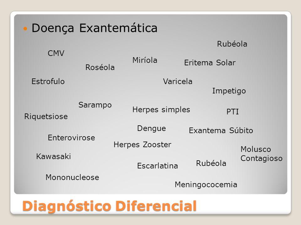 Diagnóstico Diferencial Doença Exantemática Sarampo Rubéola Varicela Exantema Súbito Roséola Enterovirose Escarlatina Herpes simples Herpes Zooster Ru