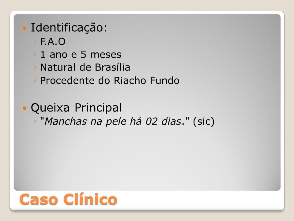 Caso Clínico Identificação: F.A.O 1 ano e 5 meses Natural de Brasília Procedente do Riacho Fundo Queixa Principal
