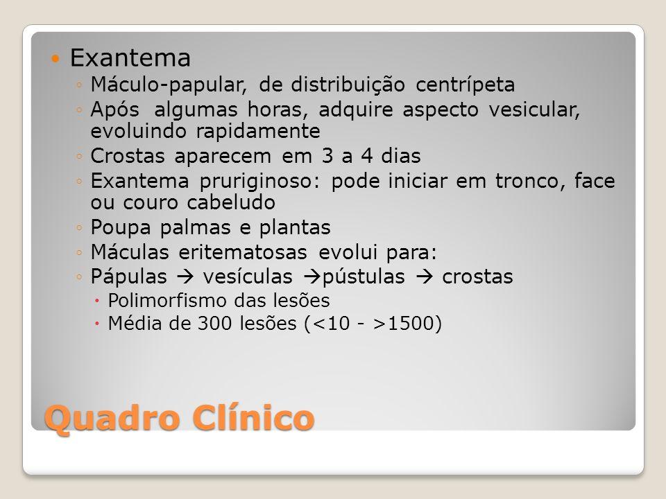 Quadro Clínico Exantema Máculo-papular, de distribuição centrípeta Após algumas horas, adquire aspecto vesicular, evoluindo rapidamente Crostas aparec