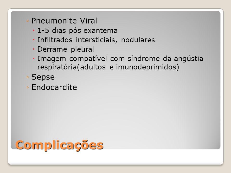 Complicações Pneumonite Viral 1-5 dias pós exantema Infiltrados intersticiais, nodulares Derrame pleural Imagem compatível com síndrome da angústia re