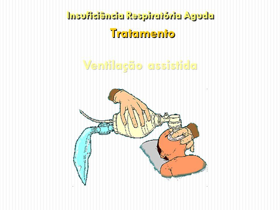 Ventilação assistida Insuficiência Respiratória Aguda Insuficiência Respiratória Aguda Tratamento