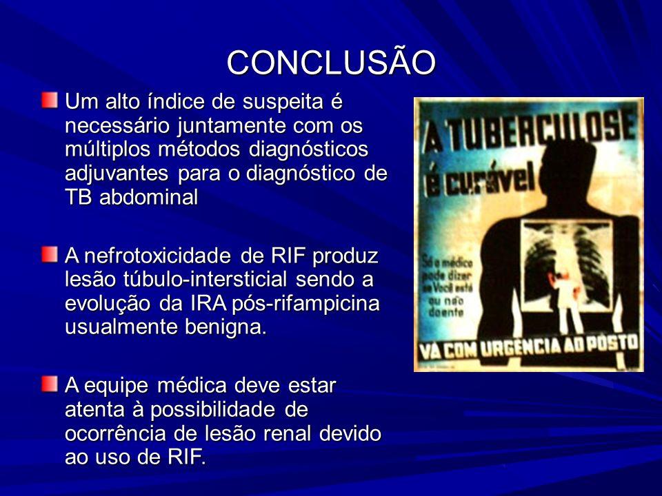 A RIFAMPICINA COMO CAUSA DE INSUFICIÊNCIA RENAL AGUDA Covic et al verificaram que a IRA causada por RIF correspondeu a 16,6% dos casos de IRA em seu s