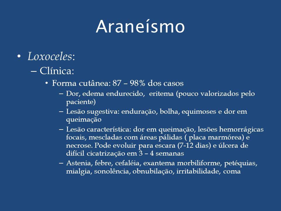 Araneísmo Loxoceles : – Clínica: Forma cutânea: 87 – 98% dos casos – Dor, edema endurecido, eritema (pouco valorizados pelo paciente) – Lesão sugestiv