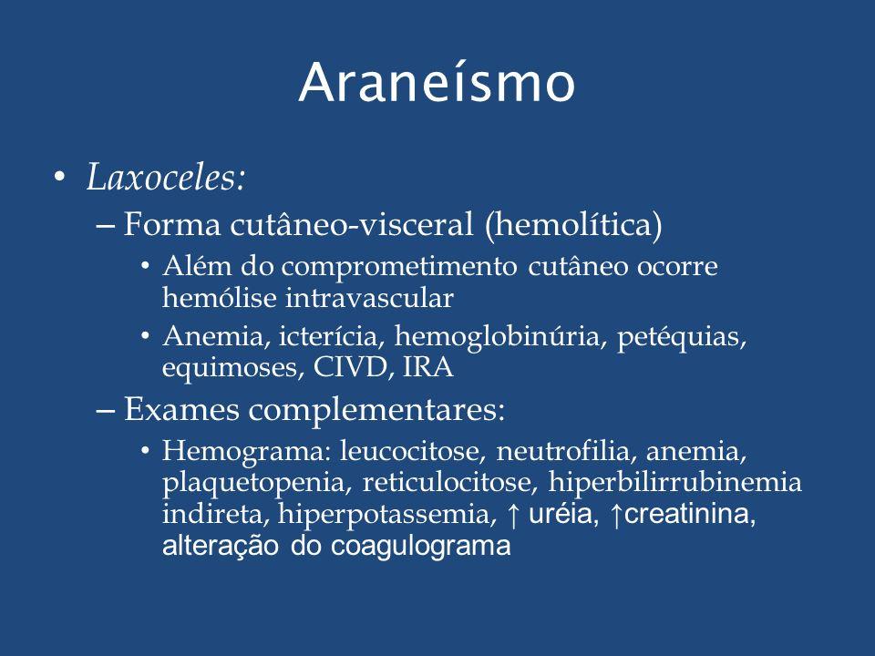 Araneísmo Laxoceles: – Forma cutâneo-visceral (hemolítica) Além do comprometimento cutâneo ocorre hemólise intravascular Anemia, icterícia, hemoglobin