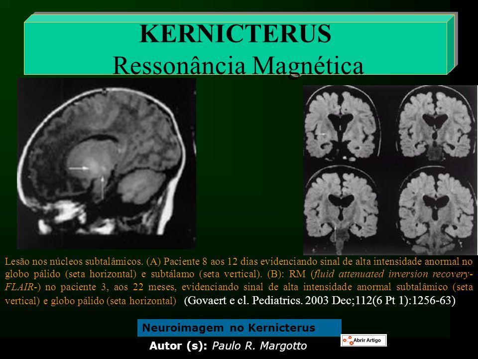 KERNICTERUS Ressonância Magnética Lesão nos núcleos subtalâmicos. (A) Paciente 8 aos 12 dias evidenciando sinal de alta intensidade anormal no globo p
