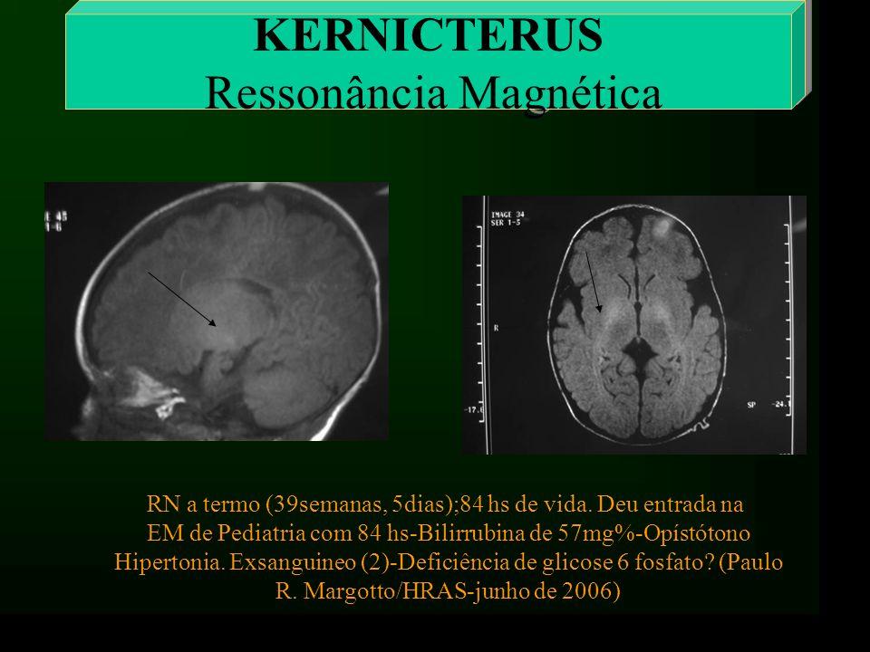 KERNICTERUS Ressonância Magnética RN a termo (39semanas, 5dias);84 hs de vida. Deu entrada na EM de Pediatria com 84 hs-Bilirrubina de 57mg%-Opístóton