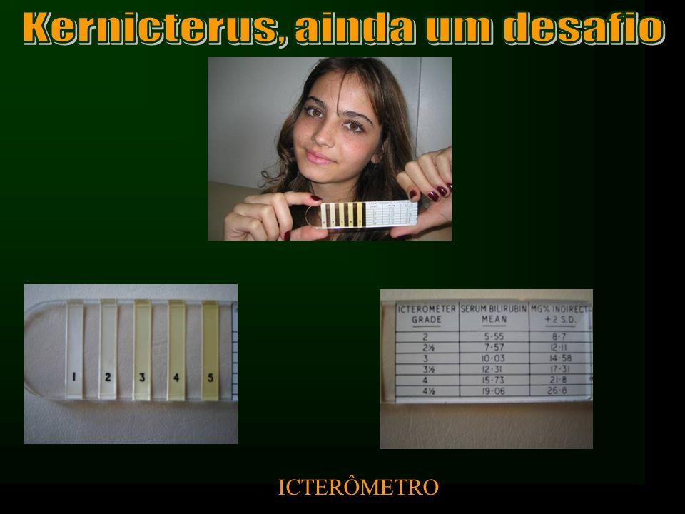 - Encefalopatia hiperbilirrubínica ou Kernicterus RN próximo do termo: –35, 36, 37 semanas Sistema de Conjugação de bilirrubina imatura Não se alimentam/vigorosamente (ingerem menos calorias) Risco de 5% para bilirrubinas > 20mg% x 1% (RN 40 sem) Se receberam alta com 48h: Revisão com 2 – 3 dias e não com 1 – 2 semanas Margotto, www.medico.org.br Newman (1999), Maisels (2002)