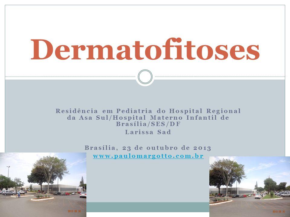 INTRODUÇÃO Dermatofitoses Infeccão na pele ou unhas causadas por fungos Tinea Captis Tinea Pedis Tinea Cruris Granuloma de Majocchi