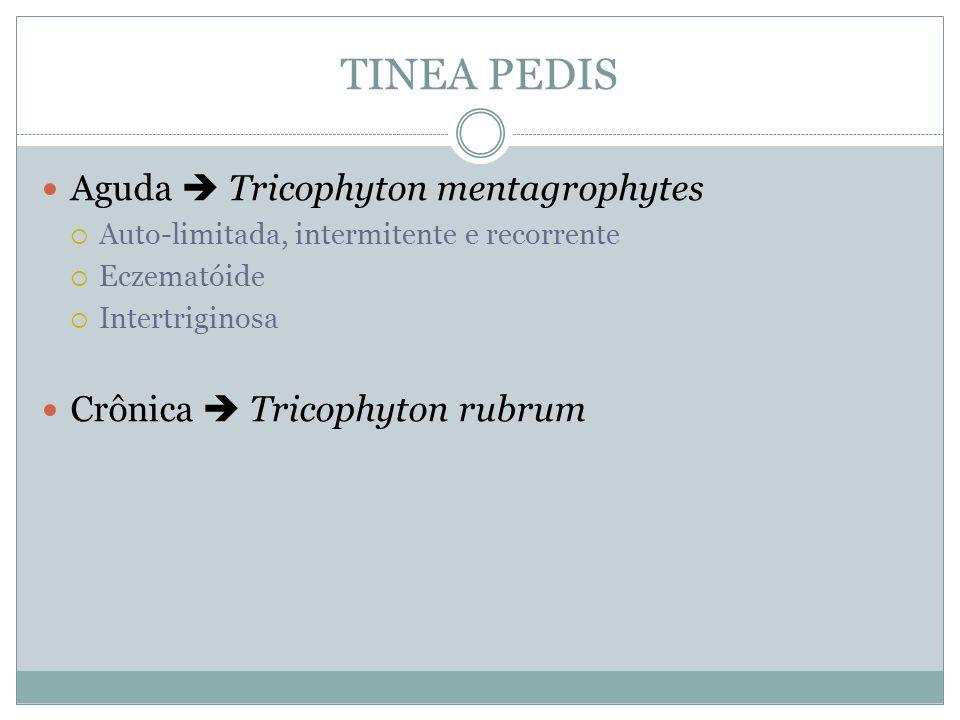 TINEA PEDIS Aguda Tricophyton mentagrophytes Auto-limitada, intermitente e recorrente Eczematóide Intertriginosa Crônica Tricophyton rubrum