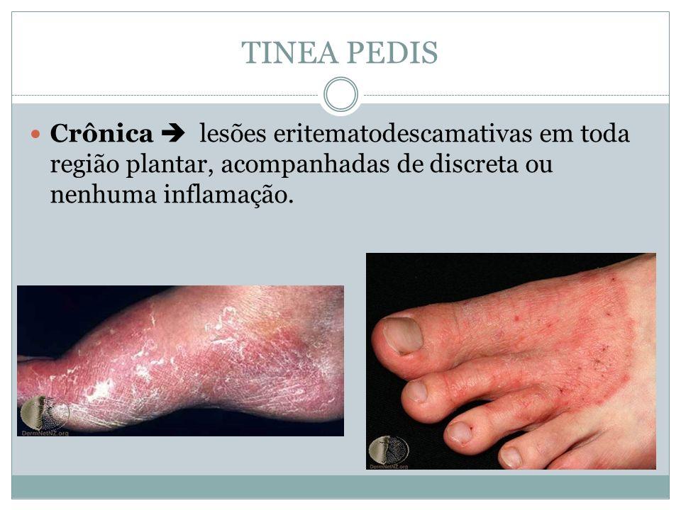 Crônica lesões eritematodescamativas em toda região plantar, acompanhadas de discreta ou nenhuma inflamação.